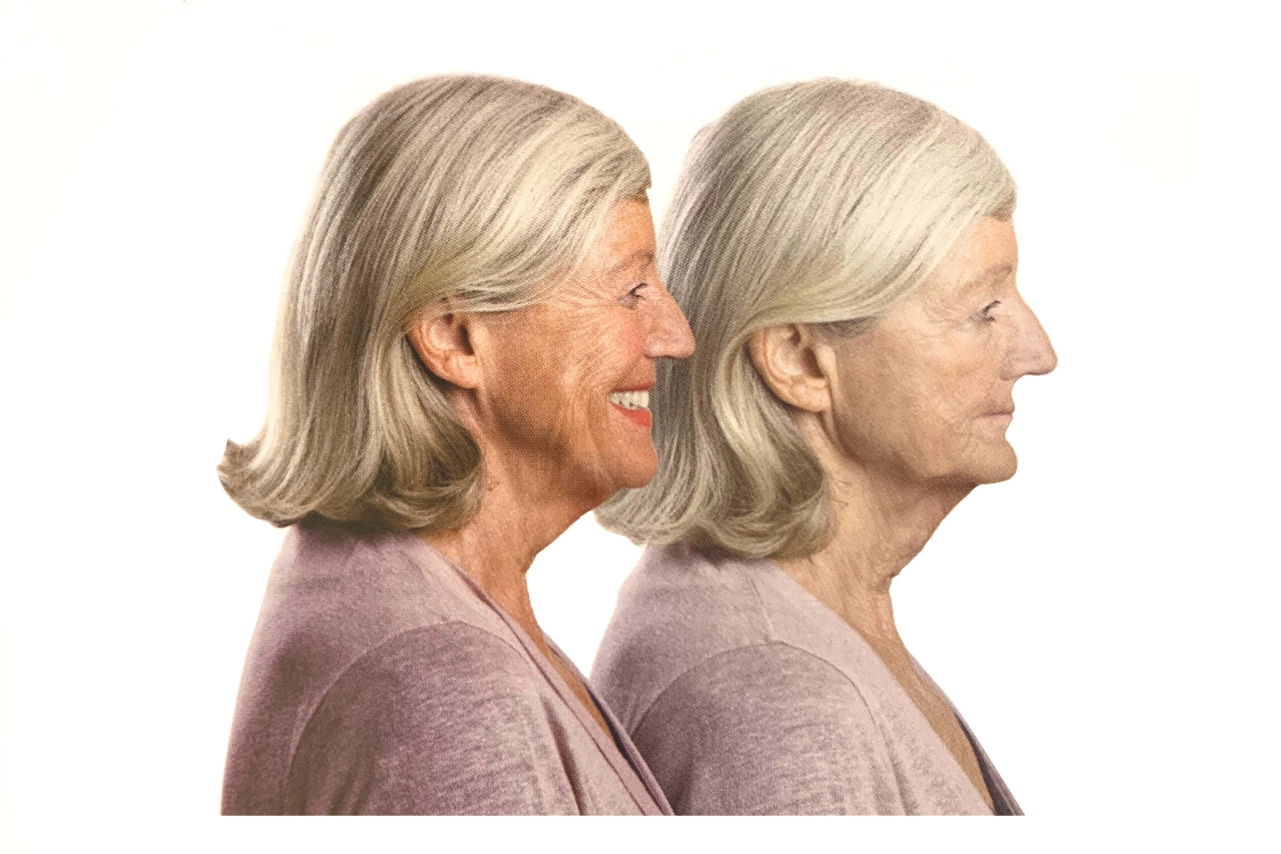 拿下 活動假牙 嚴重影響外觀