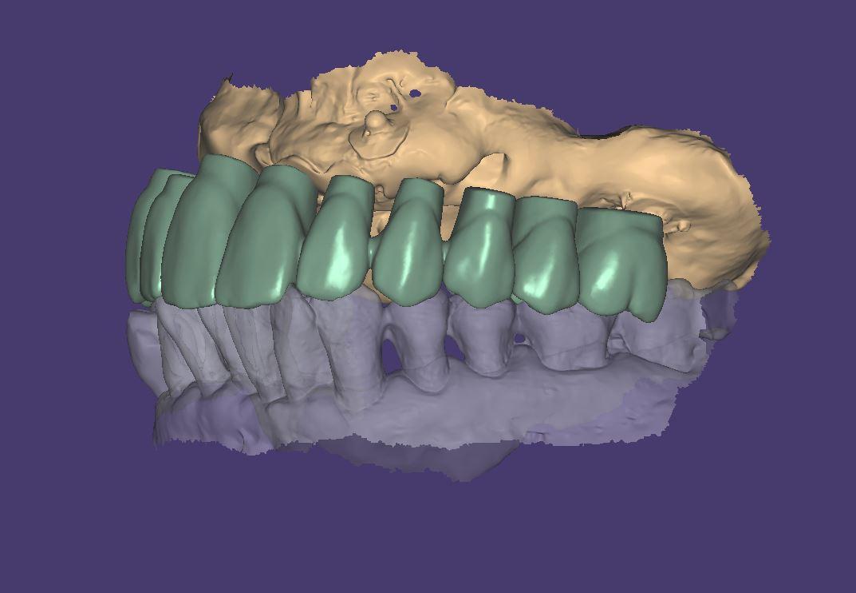 數位 All-on-4 Digital 假牙設計