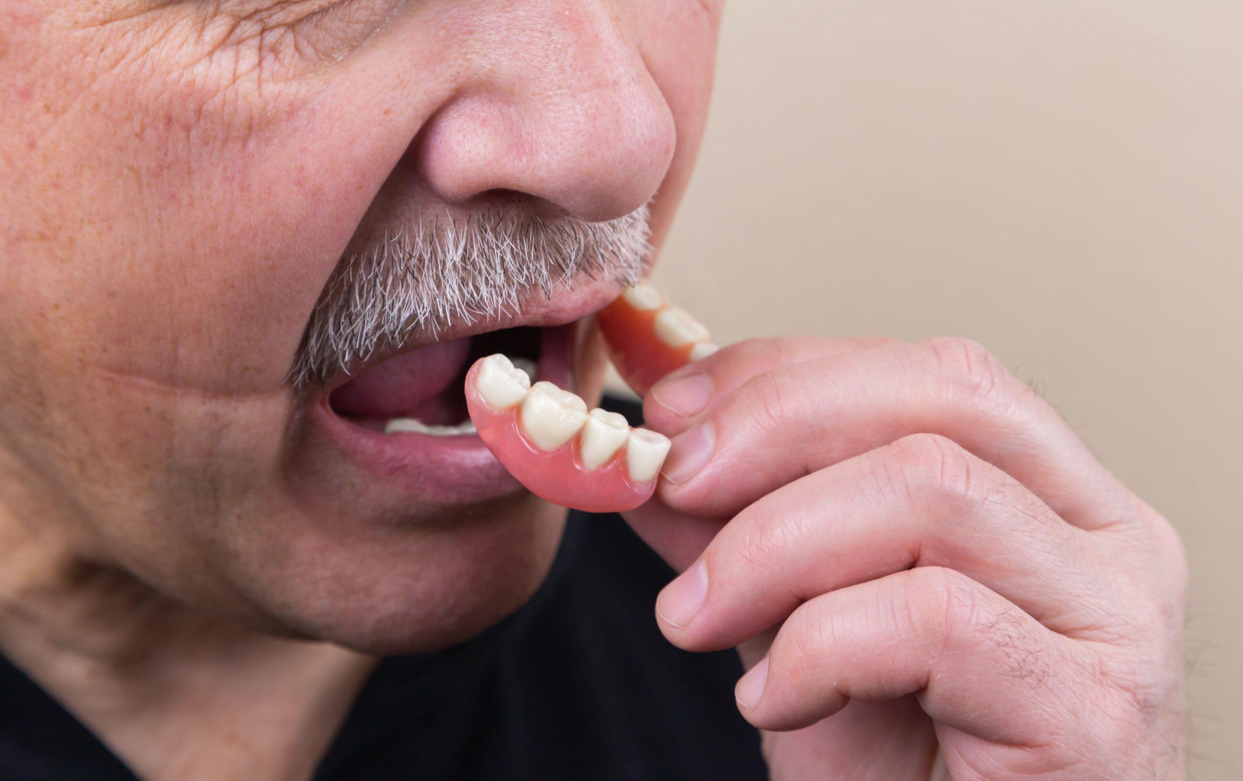 使用活動假牙容易鬆脫、進食困難。